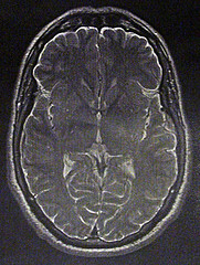 """""""Proof of Brain"""" courtesy of andypowe11 at Flickr.com"""